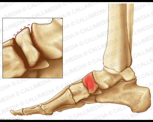 douleur os dessus pied